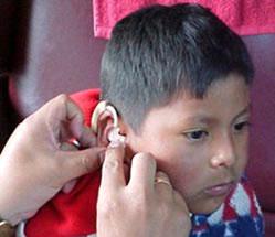 Gehoorverlies bij kinderen